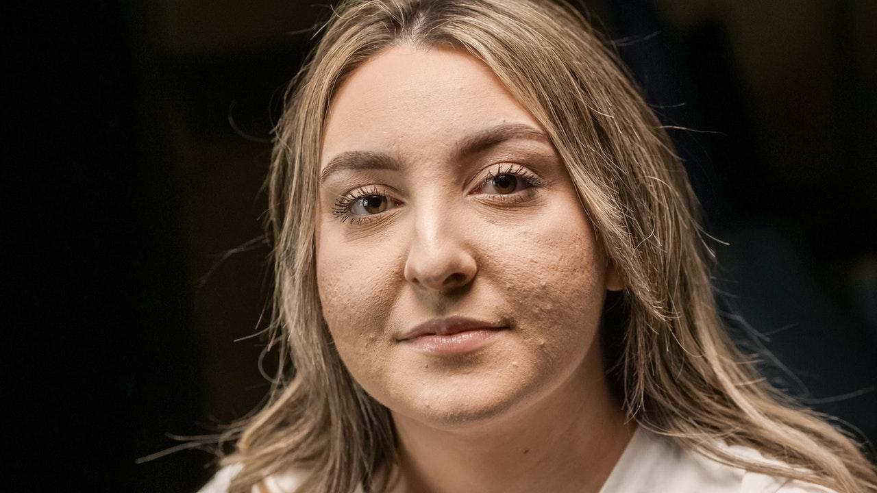 femme qui a de l'acné
